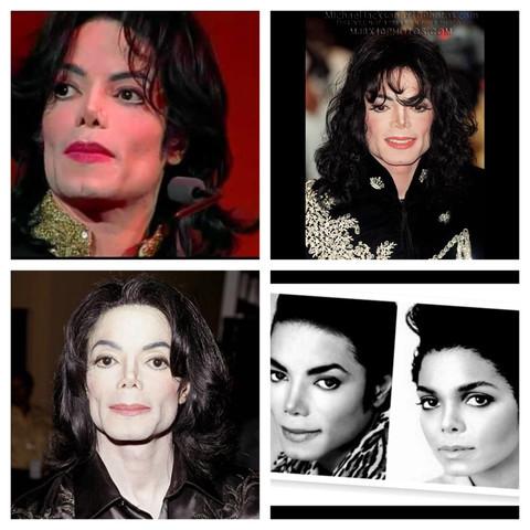 Zwei - (Krankheit, schminken, Michael Jackson)