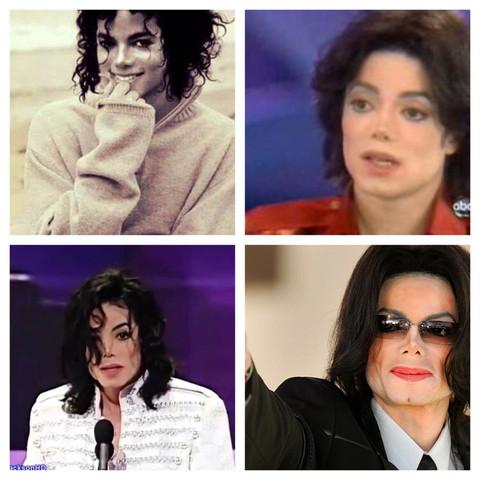 Drei - (Krankheit, schminken, Michael Jackson)