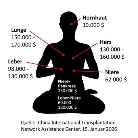 Warum werden in China, Falun-Gong Praktizierenden und anderen politischen Häftlingen die Organe geraubt?