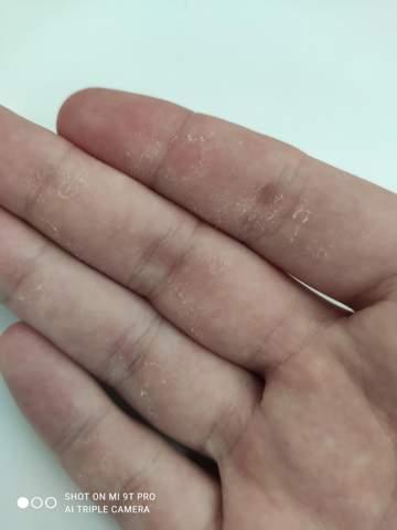 Haut löst sich ab