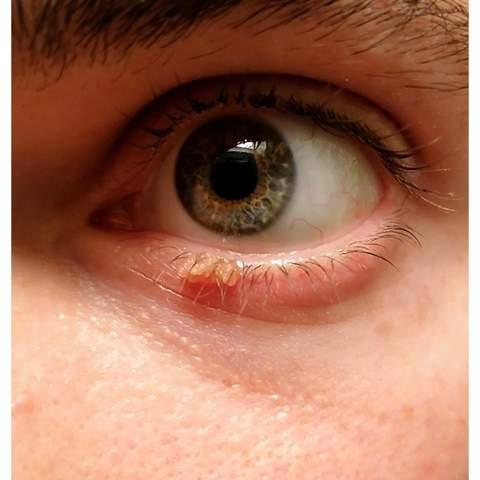 Warze am Augenlid entfernen?