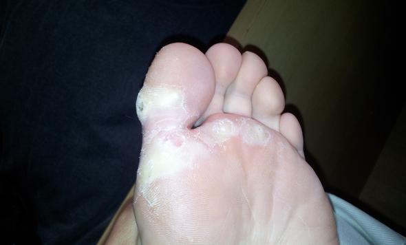 Eklige füße