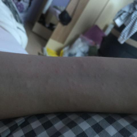Ausschlag unterarm - (Sex, Schmerzen, Krankheit)