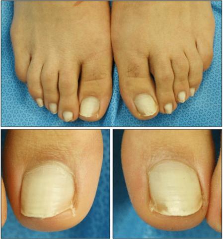 Was bedeuten weiße Fußnägel? (Medizin, fußpilz, nagelpilz)