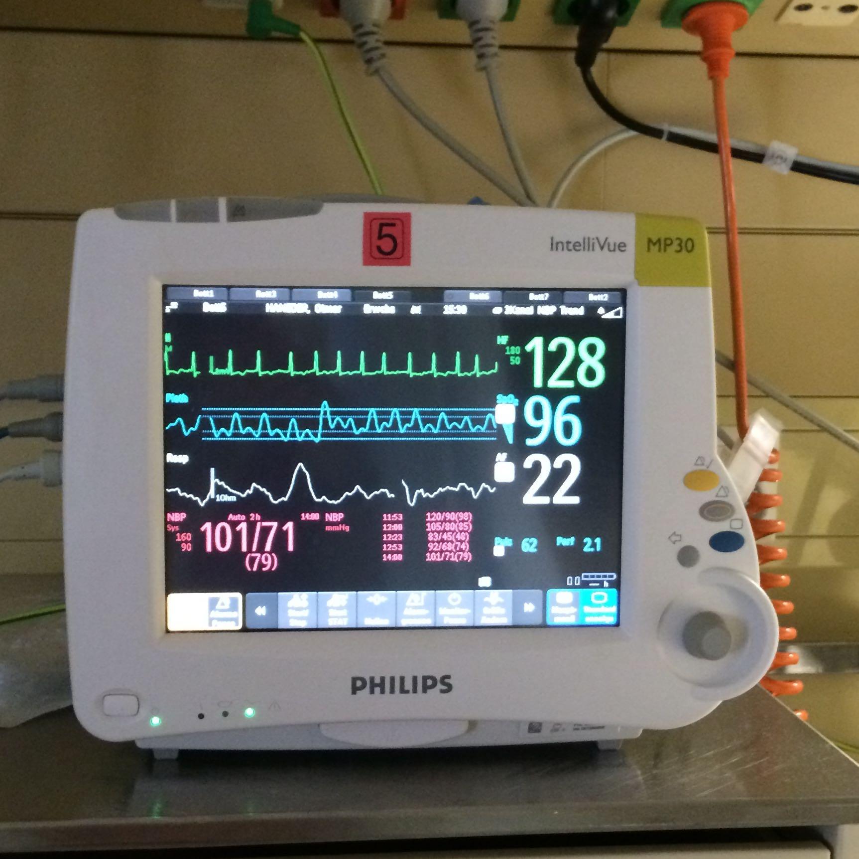 was bedeutet das auf dem monitor krank krankenhaus herz. Black Bedroom Furniture Sets. Home Design Ideas