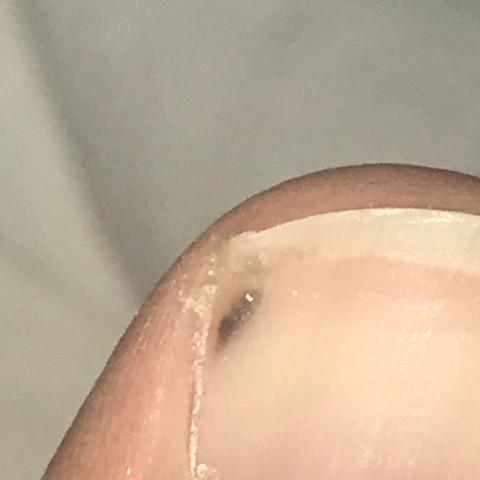 Dunkler fleck unterm zehennagel