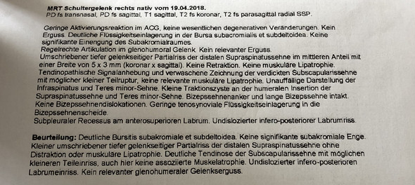 Was bedeutet Rotatorenmanschettenruptur und Bursitis subakromiali ...