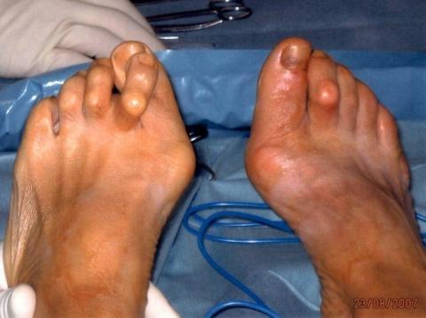 Was bewegt Frauen heute Pumps oder High Heels zu tragen wenn sie später deformierte Füße haben?