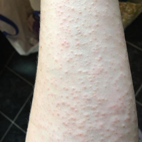 Mein Hautausschlag - (jucken, Hautausschlag)