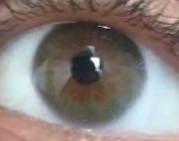 Das Auge um das es sich handelt - (Augen, Farbe, Augenfarbe)