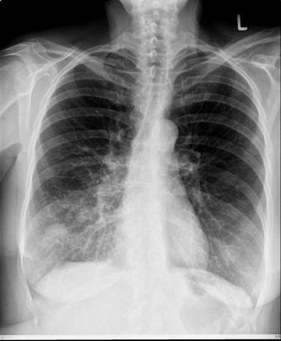 was f r eine raumverdr ngung kann das im unteren rechten lungenlappen sein medizin lunge tumor. Black Bedroom Furniture Sets. Home Design Ideas