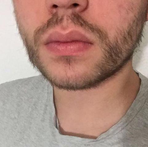 Bart bekommen mehr Er hat