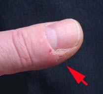 Eingerissene Haut - (Medizin, Arzt, Haut)