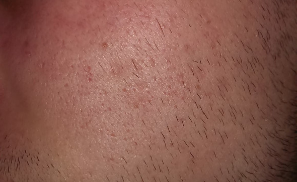 Linke Wange - (Männer, Haut, Pickel)