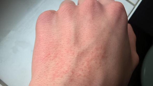 Linke Hand 03 - (Gesundheit, Pickel, Link)