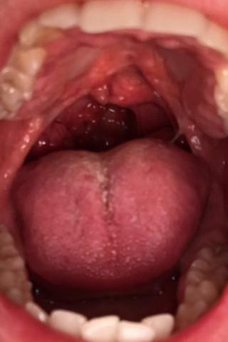 Rachen  - (Gesundheit, Ohr, Hals)