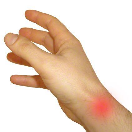 Beim roten schmerzt auch meine Hand  - (Arzt, Schmerzen, Gewicht)