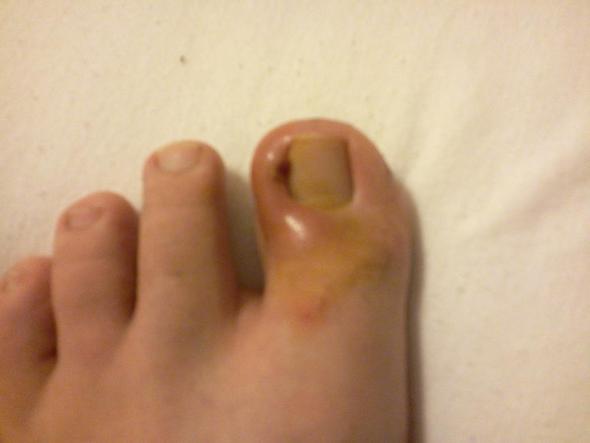 Zeh am entzündetes nagelbett Nagelbettentzündung: Diese