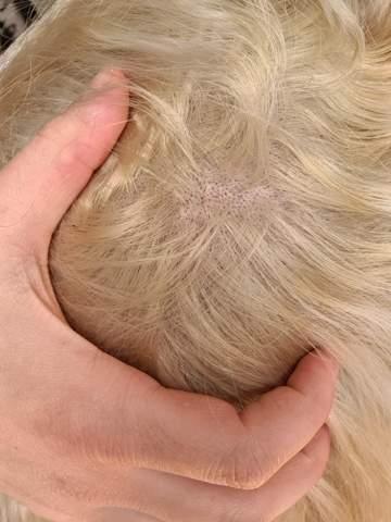 Haare weh kopfhaut bewegen beim tut Schmerzende Kopfhaut: