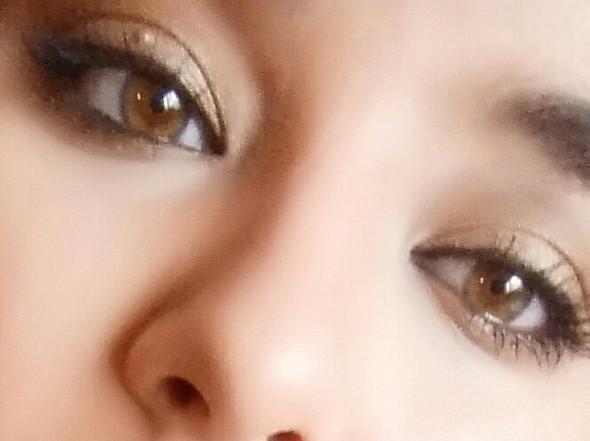 augenlid knötchen  - (Gesundheit, Augen)
