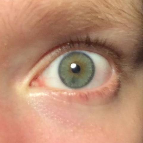 Sorry wegen dem Lichtpunkt - (Augen, blau, grün)