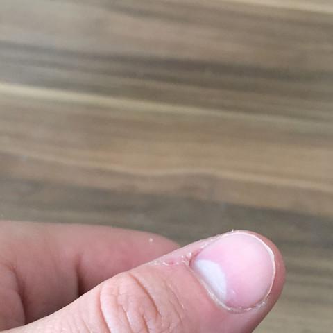 Weißer Nagel - (Gesundheit, Alkohol, Drogen)