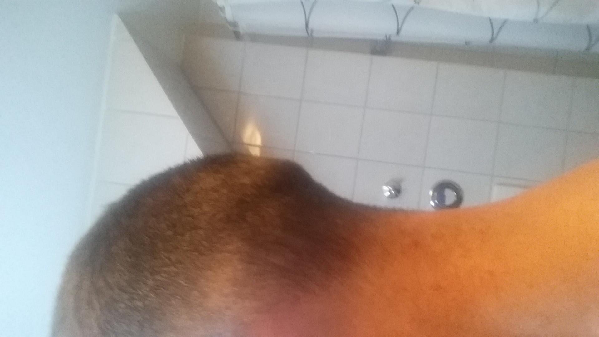 Die ergebnisreiche Behandlung beim Haarausfall bei den Frauen