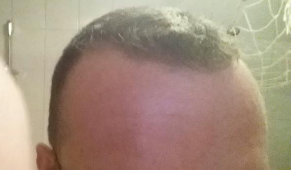 von Vorne - (Haarausfall, Glatze, geheimratsecken)