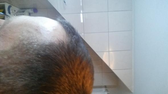 Seite - (Haarausfall, Glatze, geheimratsecken)