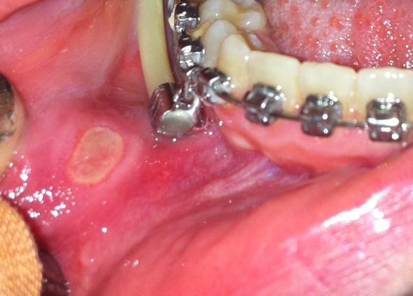 Ist das schlimm - (Schmerzen, Zähne, Zahnspange)