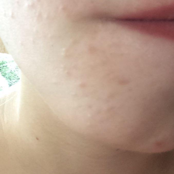Was Tun Gegen Bindegewebsschwäche Was Hilft Gegen Diese Pickel Haut Akne