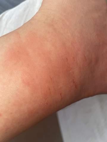 Was hilft gegen Jucken (Mückenstich)?