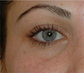 Augenfalten Mit 25