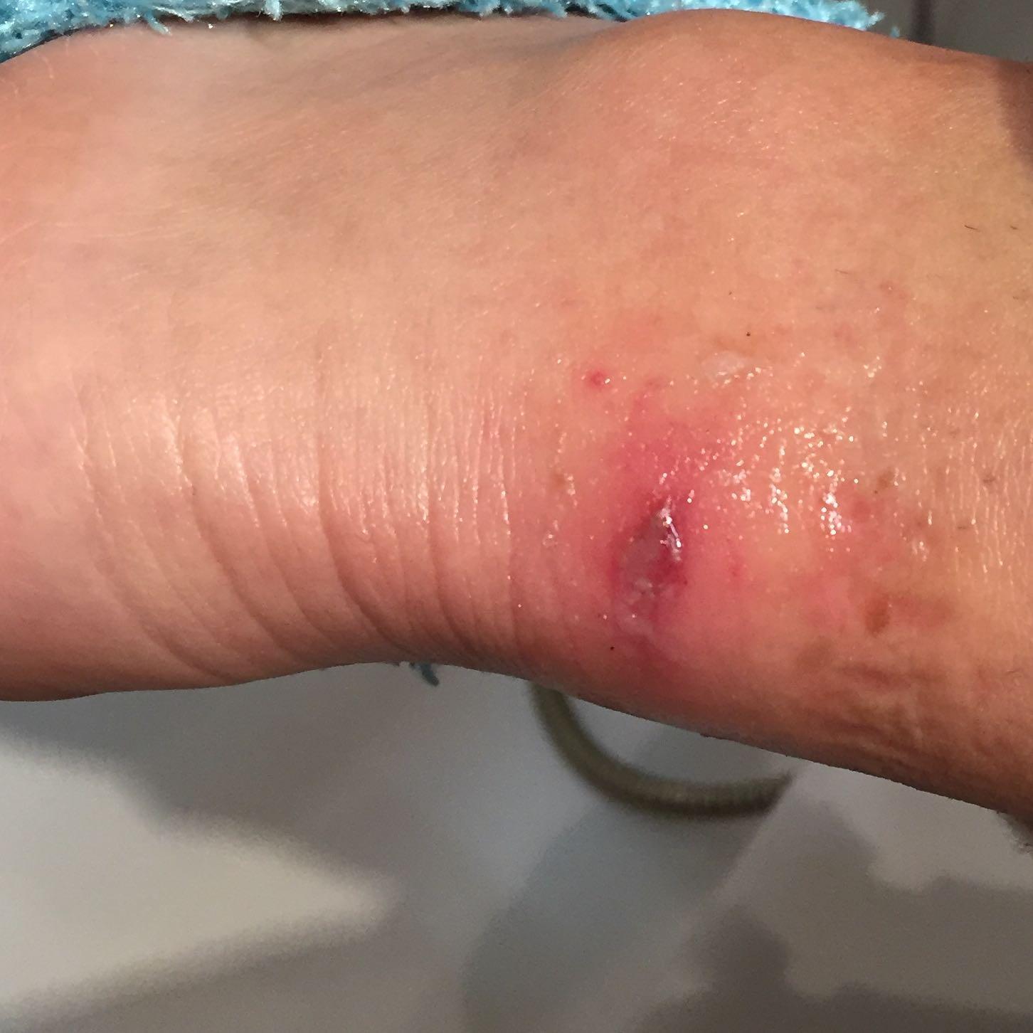 Was ist da passiert? (Blase am Fuß+Bild)? (Schmerzen, Füße)