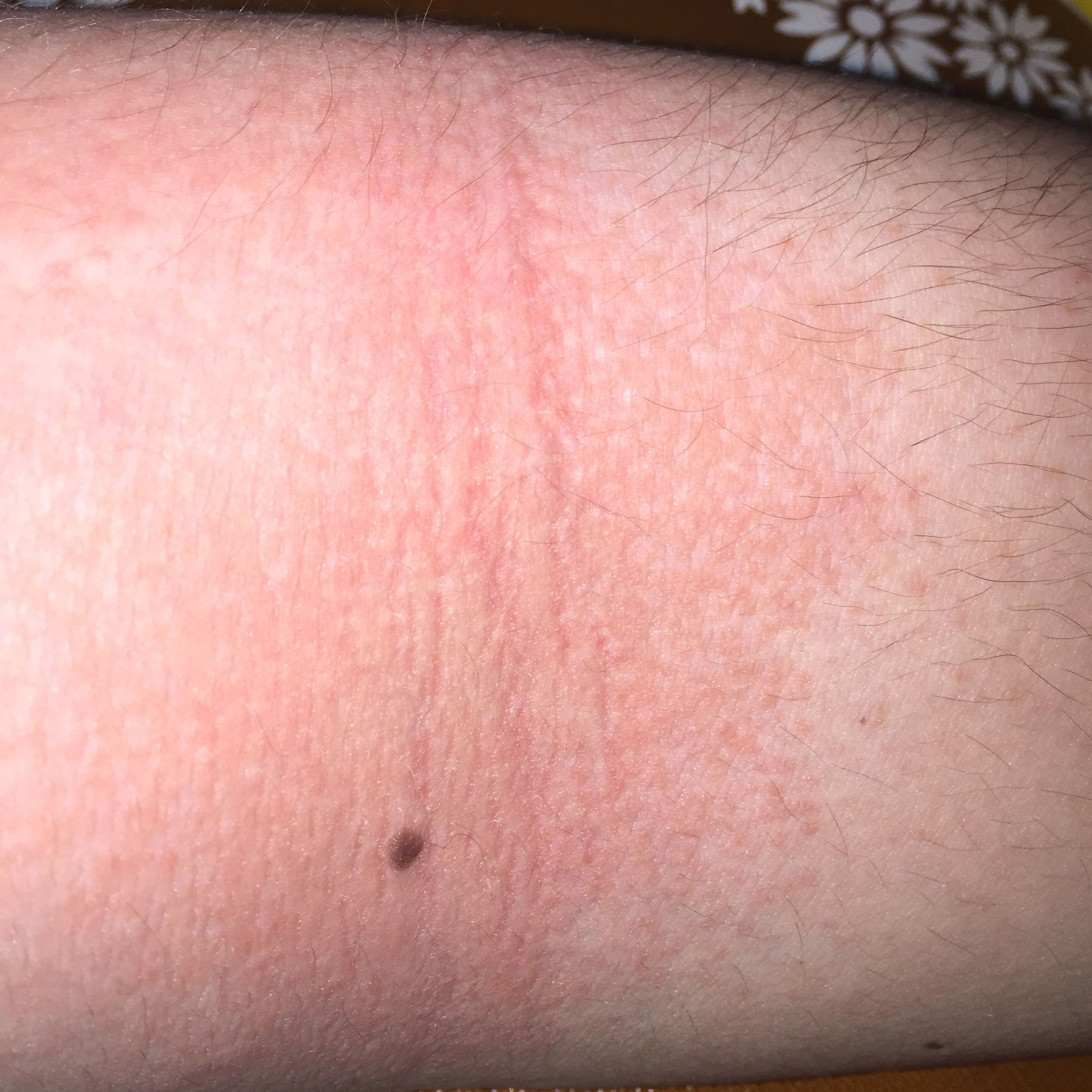 Was ist das? Trockene Haut? Allergie? (Arzt, Juckreiz)