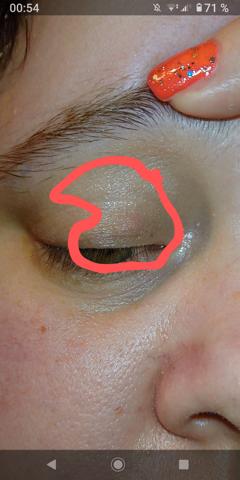 Was ist das am Auge?