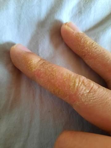 Was ist das am Finger?