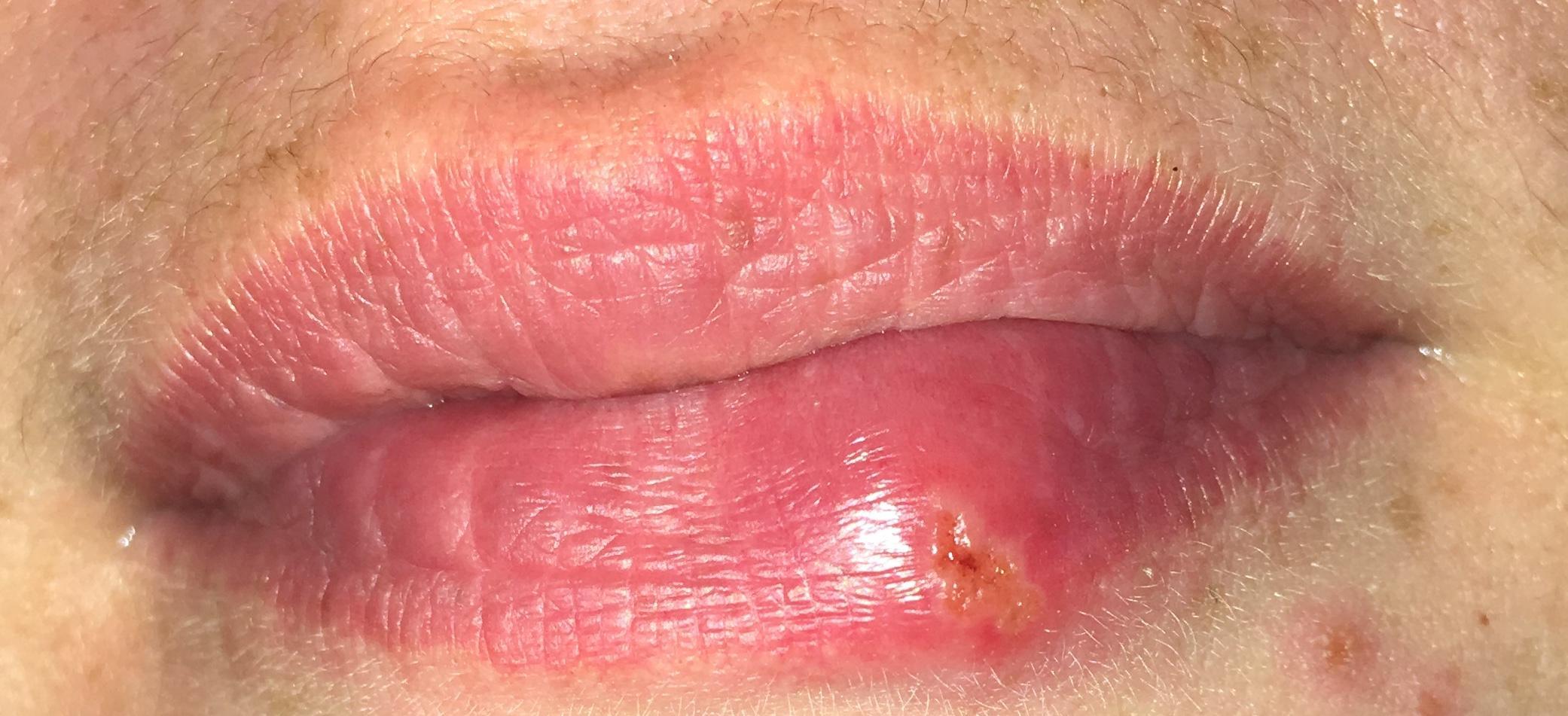 Was ist das an der Lippe? Herpes oder Abszess? (Gesundheit