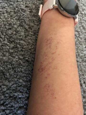 Was ist das an meinem Arm?