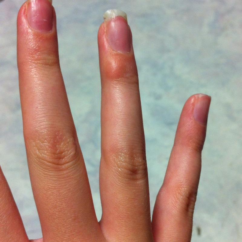 was ist das an meinem ringfinger finger knochen. Black Bedroom Furniture Sets. Home Design Ideas