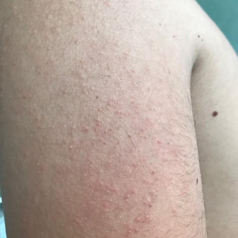 Was ist das  - (Haut)