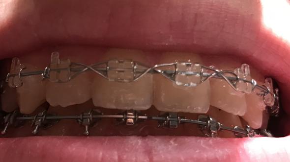 Was ist das an meiner Zahnspange?