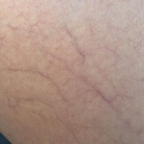 Diese kleinen Adern - (Körper, Adern, Hautirritation)