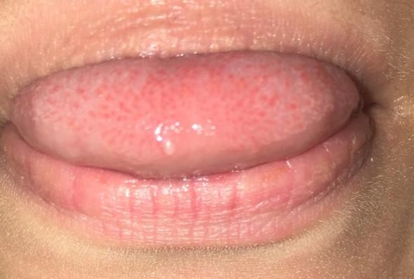 Zunge bläschen hinterer bereich