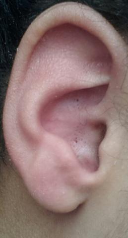 Schwarzer Punkt Im Ohr