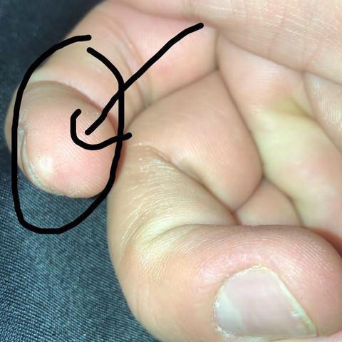 Fingernägel dicke Trommelschlägelfinger