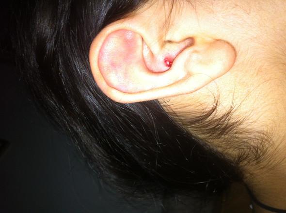Ohr - (Ohr, Verletzung)