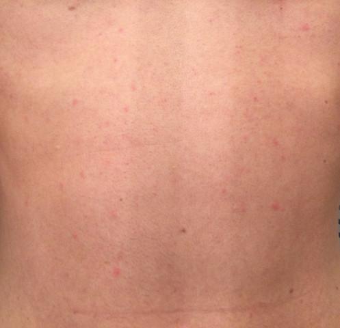 Bauch - (Haut, Ausschlag, Hautprobleme)