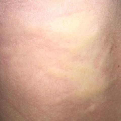Ausschlag  - (Arzt, Krankheit, Haut)