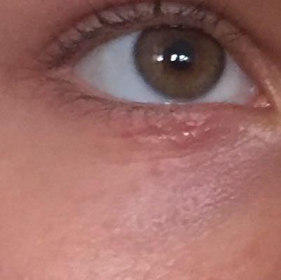Der Abgang von der Person die Säcke unter den Augen